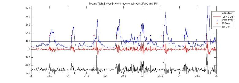Electrical Potential, first order difference and 2nd degree first order difference data from Biceps pops