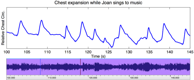 respsample_joansinging